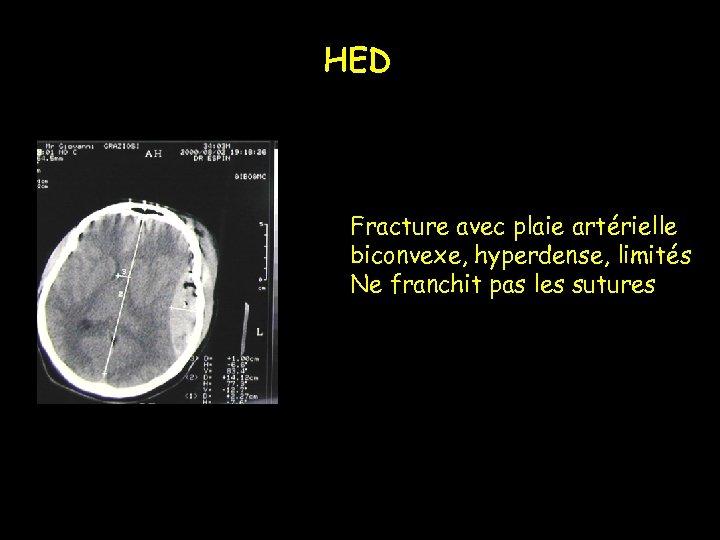 HED Fracture avec plaie artérielle biconvexe, hyperdense, limités Ne franchit pas les sutures