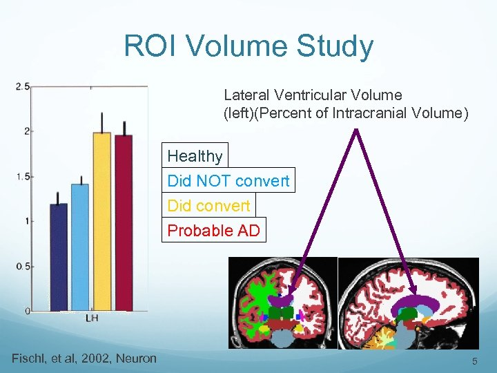 ROI Volume Study Lateral Ventricular Volume (left)(Percent of Intracranial Volume) Healthy Did NOT convert