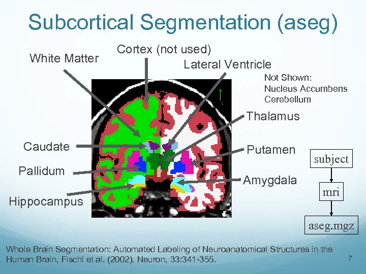 Subcortical Segmentation (aseg) White Matter Cortex (not used) Lateral Ventricle Not Shown: Nucleus Accumbens