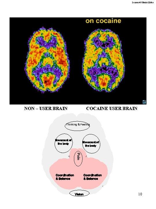 Lesson #2 Brain Slides NON – USER BRAIN COCAINE USER BRAIN Thinking & Feeling