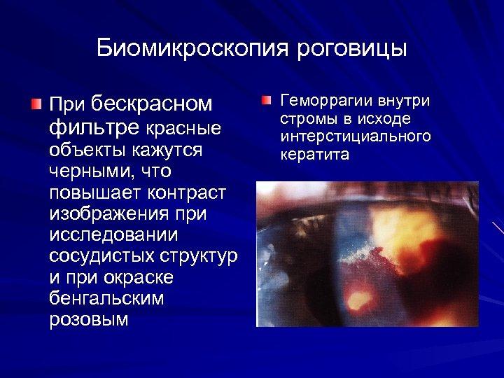 Биомикроскопия роговицы При бескрасном фильтре красные объекты кажутся черными, что повышает контраст изображения при