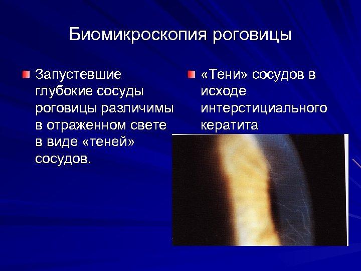 Биомикроскопия роговицы Запустевшие глубокие сосуды роговицы различимы в отраженном свете в виде «теней» сосудов.