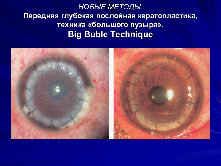 НОВЫЕ МЕТОДЫ: Передняя глубокая послойная кератопластика, техника «большого пузыря» . Big Buble Technique