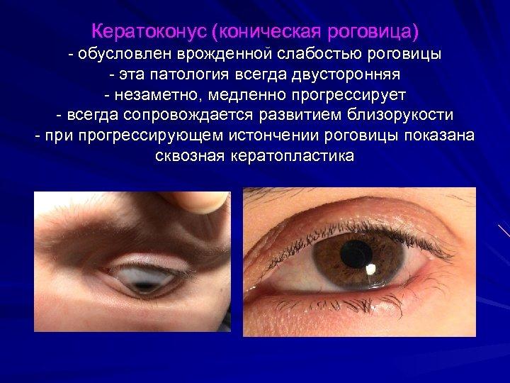 Кератоконус (коническая роговица) - обусловлен врожденной слабостью роговицы - эта патология всегда двусторонняя -