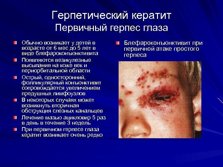 Герпетический кератит Первичный герпес глаза Обычно возникает у детей в возрасте от 6 мес