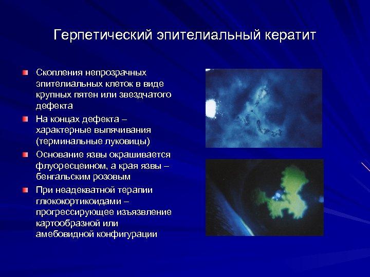 Герпетический эпителиальный кератит Скопления непрозрачных эпителиальных клеток в виде крупных пятен или звездчатого дефекта