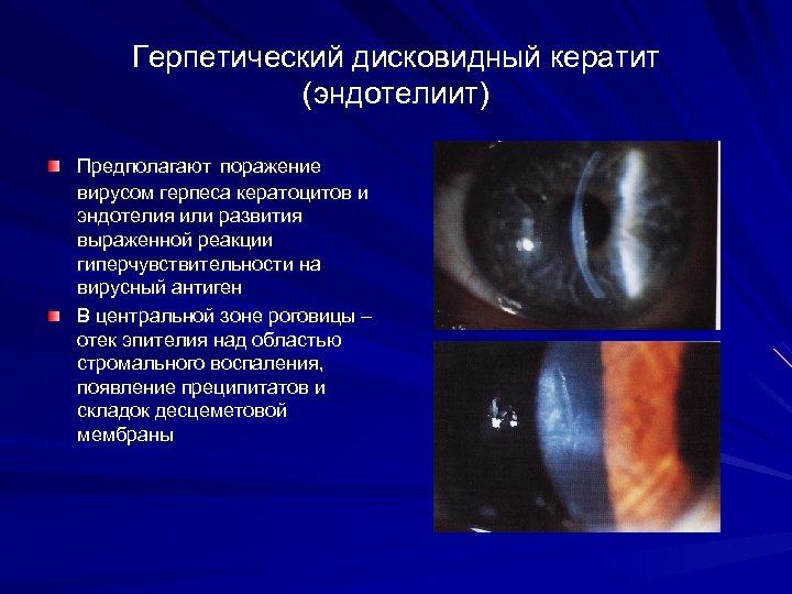 Герпетический дисковидный кератит (эндотелиит) Предполагают поражение вирусом герпеса кератоцитов и эндотелия или развития выраженной