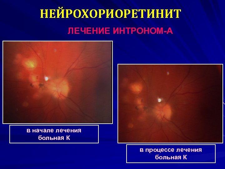 НЕЙРОХОРИОРЕТИНИТ ЛЕЧЕНИЕ ИНТРОНОМ-А в начале лечения больная К в процессе лечения больная К