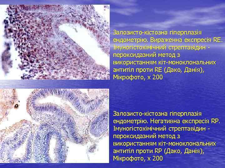 Залозисто-кістозна гіперплазія ендометрію. Вираженна експресія RE. Імуногістохімічний стрептавідин - пероксидазний метод з використанням кіт-моноклональних