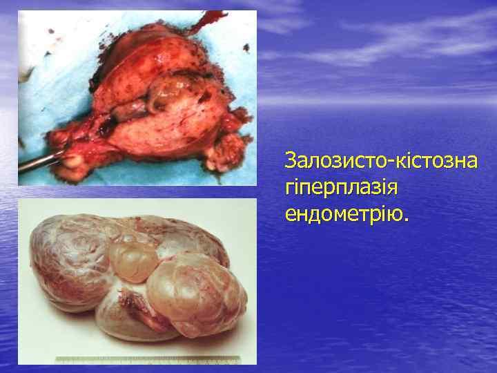 Залозисто-кістозна гіперплазія ендометрію.