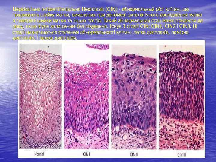 Цервікальна інтраепітеліальна Неоплазія (CIN) - абнормальный ріст клітин, що покривають шийку матки, виявлених при