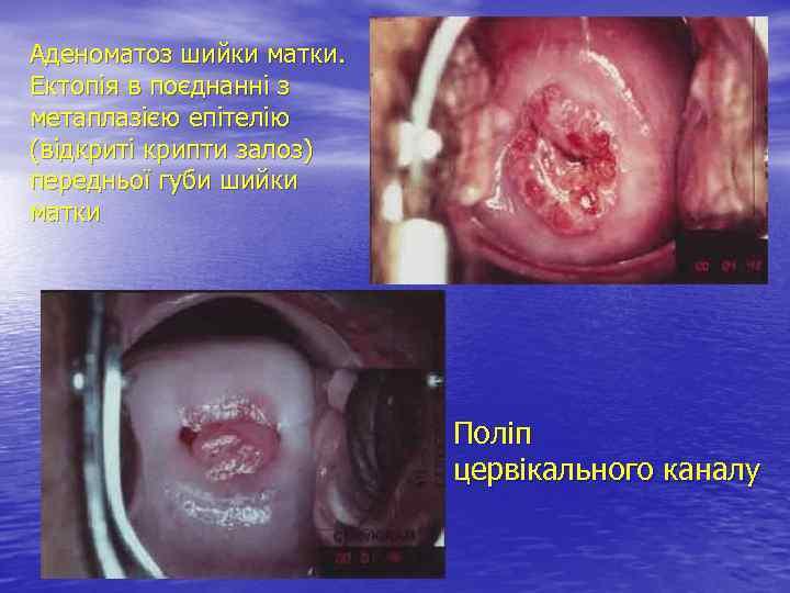 Аденоматоз шийки матки. Ектопія в поєднанні з метаплазією епітелію (відкриті крипти залоз) передньої губи