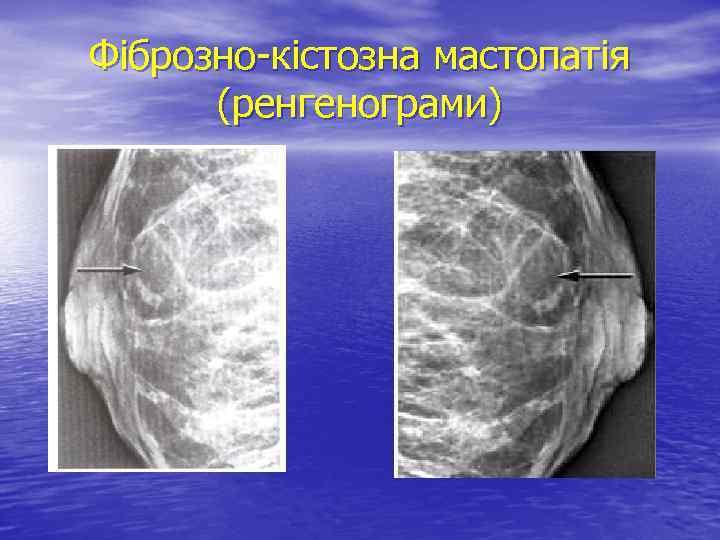 Фіброзно-кістозна мастопатія (ренгенограми)
