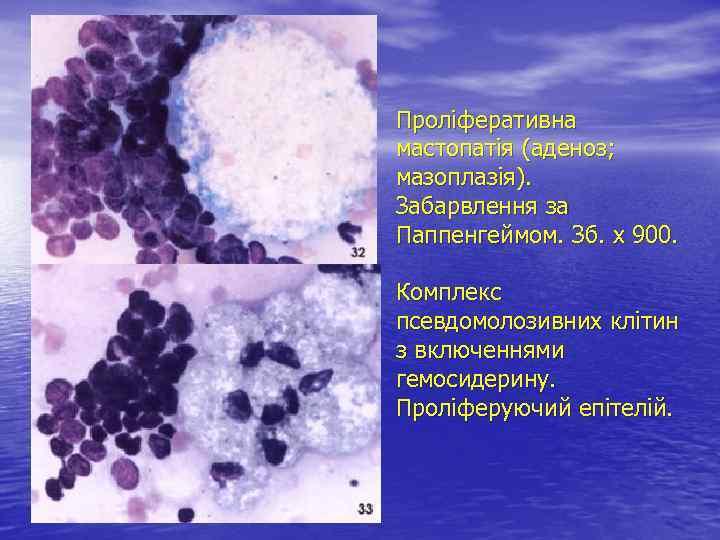 Проліферативна мастопатія (аденоз; мазоплазія). Забарвлення за Паппенгеймом. Зб. х 900. Комплекс псевдомолозивних клітин з