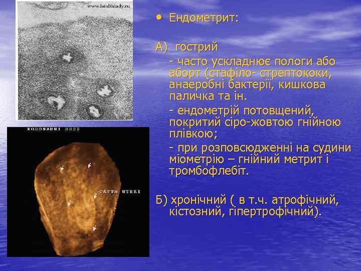• Ендометрит: А) гострий - часто ускладнює пологи аборт (стафіло- стрептококи, анаеробні бактерії,