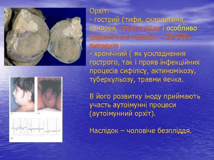 Орхіт: - гострий (тифи, скарлатина, гонорея, туберкульоз і особливо епідемічний паротит – 20 -30%
