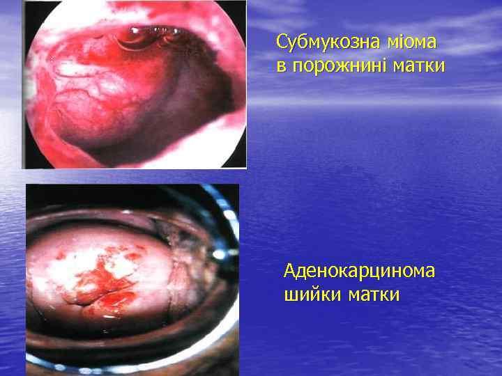 Субмукозна міома в порожнині матки Аденокарцинома шийки матки