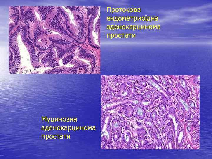 Протокова ендометриоїдна аденокарцинома простати Муцинозна аденокарцинома простати