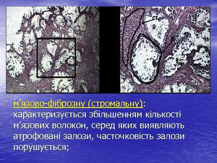 м'язово-фіброзну (стромальну): характеризується збільшенням кількості м'язових волокон, серед яких виявляють атрофовані залози, часточковість залози