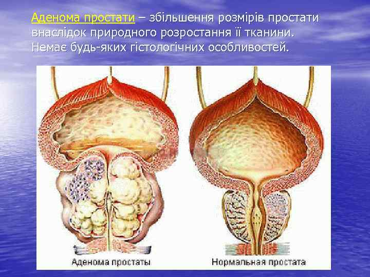 Аденома простати – збільшення розмірів простати внаслідок природного розростання її тканини. Немає будь-яких гістологічних