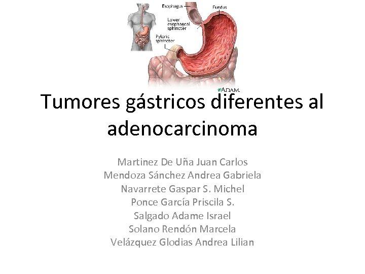 Tumores gástricos diferentes al adenocarcinoma Martinez De Uña Juan Carlos Mendoza Sánchez Andrea Gabriela