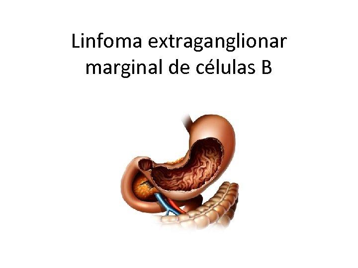 Linfoma extraganglionar marginal de células B