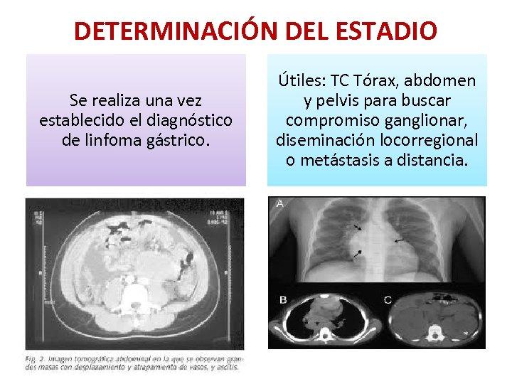 DETERMINACIÓN DEL ESTADIO Se realiza una vez establecido el diagnóstico de linfoma gástrico. Útiles: