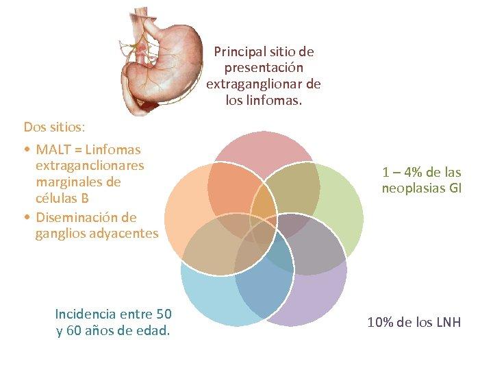 Principal sitio de presentación extraganglionar de los linfomas. Dos sitios: • MALT = Linfomas