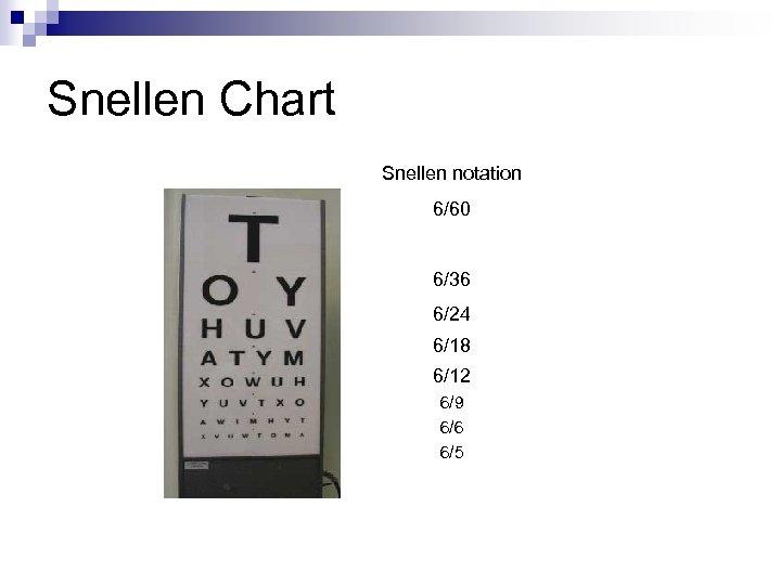 Snellen Chart Snellen notation 6/60 6/36 6/24 6/18 6/12 6/9 6/6 6/5