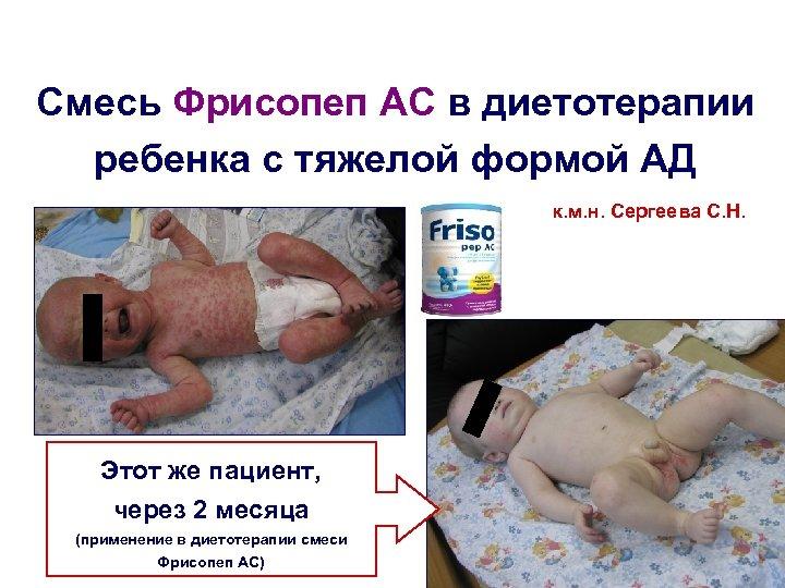 Смесь Фрисопеп АС в диетотерапии ребенка с тяжелой формой АД к. м. н. Сергеева