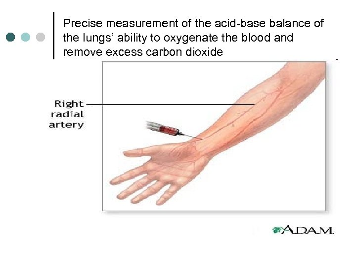 Precise measurement of the acid-base balance of the lungs' ability to oxygenate the blood