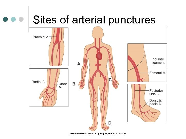 Sites of arterial punctures
