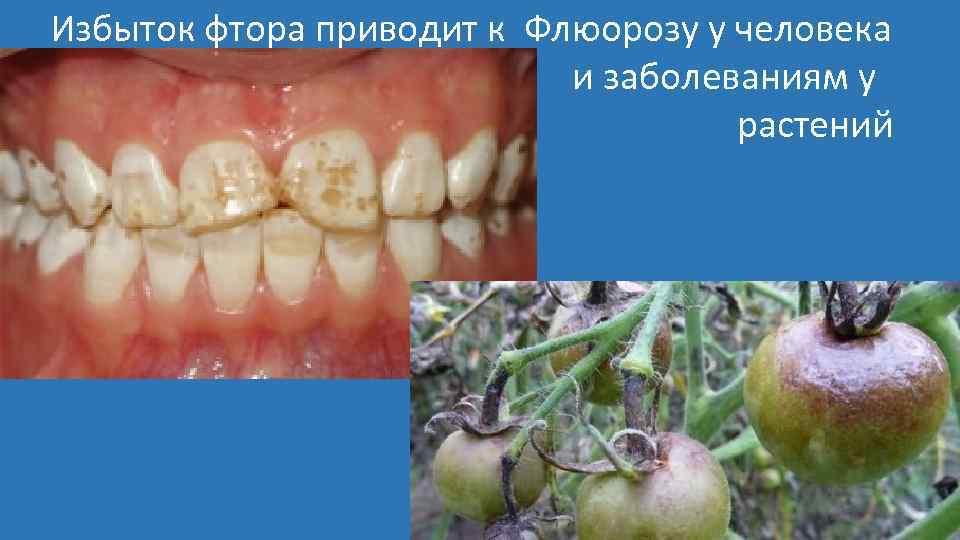 Избыток фтора приводит к Флюорозу у человека и заболеваниям у растений