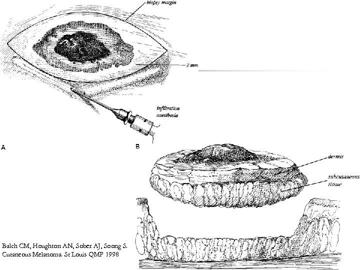 Balch CM, Houghton AN, Sober AJ, Soong S. Cutaneous Melanoma. St Louis QMP 1998