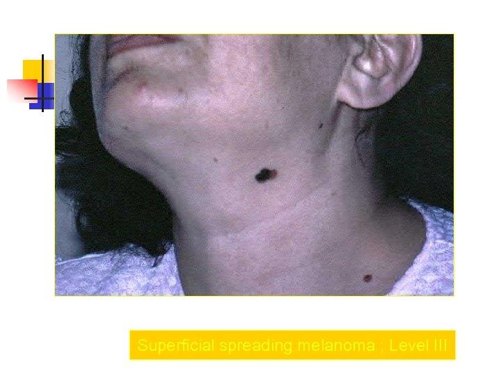 Superficial spreading melanoma ; Level III
