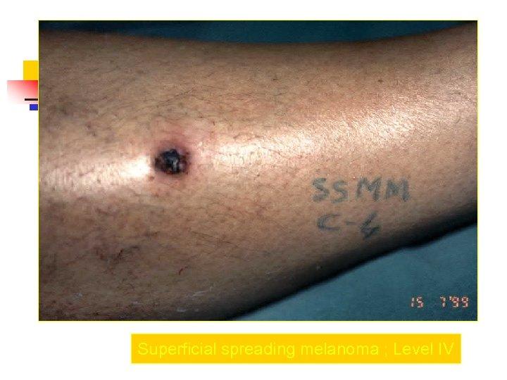 Superficial spreading melanoma ; Level IV