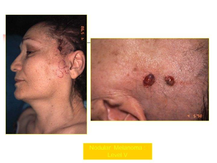 Nodular Melanoma : Level V