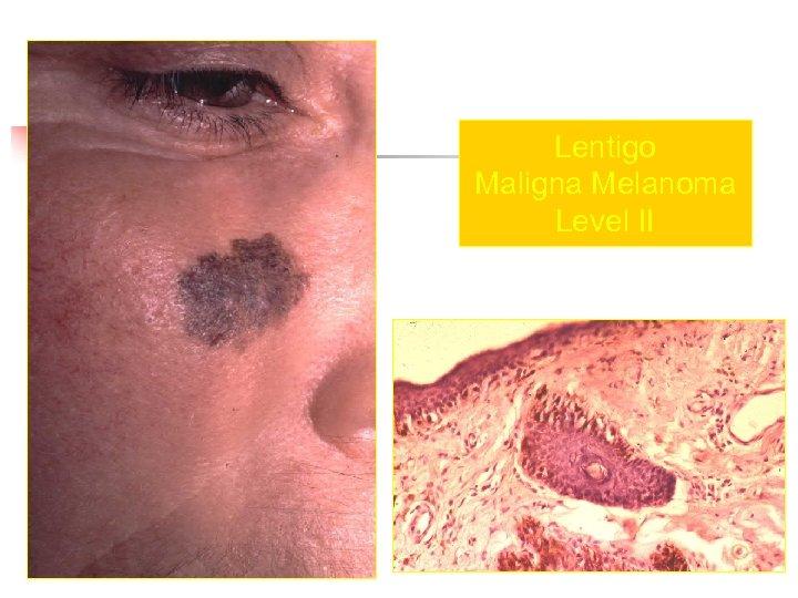 Lentigo Maligna Melanoma Level II