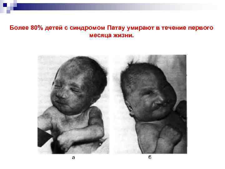 Более 80% детей с синдромом Патау умирают в течение первого месяца жизни.