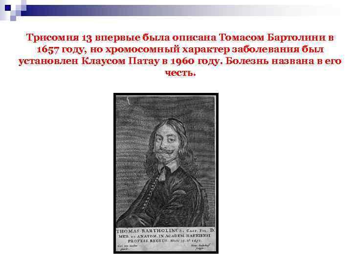 Трисомия 13 впервые была описана Томасом Бартолини в 1657 году, но хромосомный характер заболевания