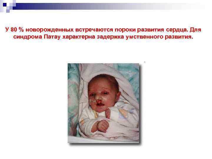 У 80 % новорожденных встречаются пороки развития сердца. Для синдрома Патау характерна задержка умственного