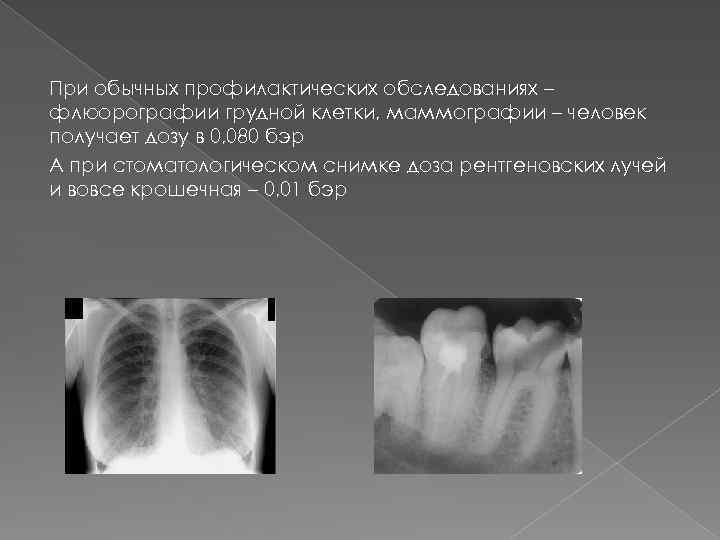 При обычных профилактических обследованиях – флюорографии грудной клетки, маммографии – человек получает дозу в