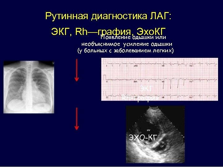 Рутинная диагностика ЛАГ: ЭКГ, Rh—графия, одышки или Эхо. КГ Появление необъяснимое усиление одышки (у
