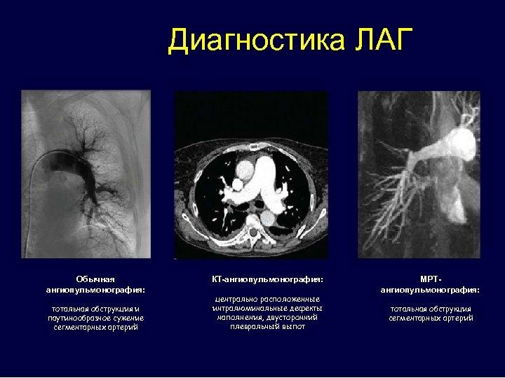 Диагностика ЛАГ Обычная ангиопульмонография: тотальная обструкция и паутинообразное сужение сегментарных артерий КТ-ангиопульмонография: центрально расположенные