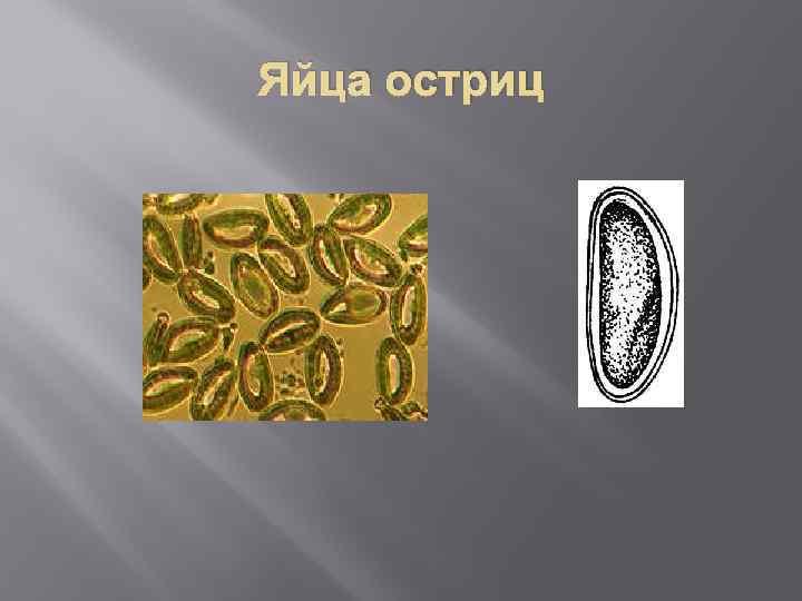 enterobiosis etiológia a férgektől, hogyan lehet megszabadulni a narancsbőrtől