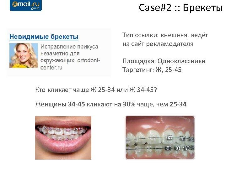 Case#2 : : Брекеты Тип ссылки: внешняя, ведёт на сайт рекламодателя Площадка: Одноклассники Таргетинг: