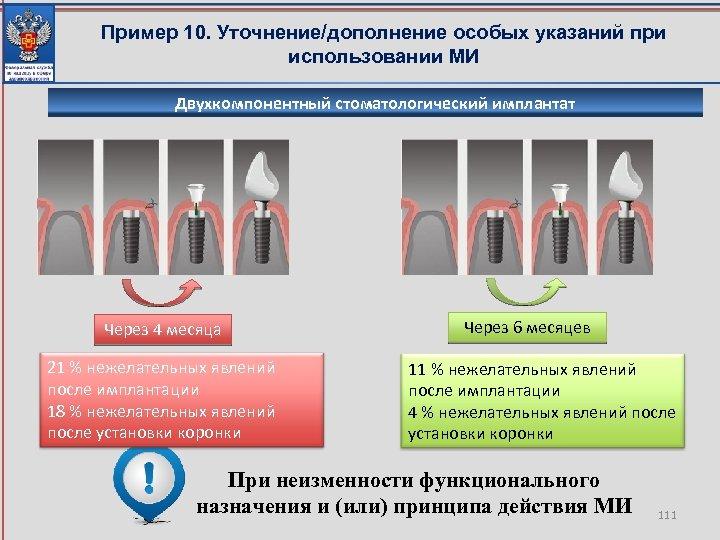 Пример 10. Уточнение/дополнение особых указаний при использовании МИ Двухкомпонентный стоматологический имплантат Через 4 месяца