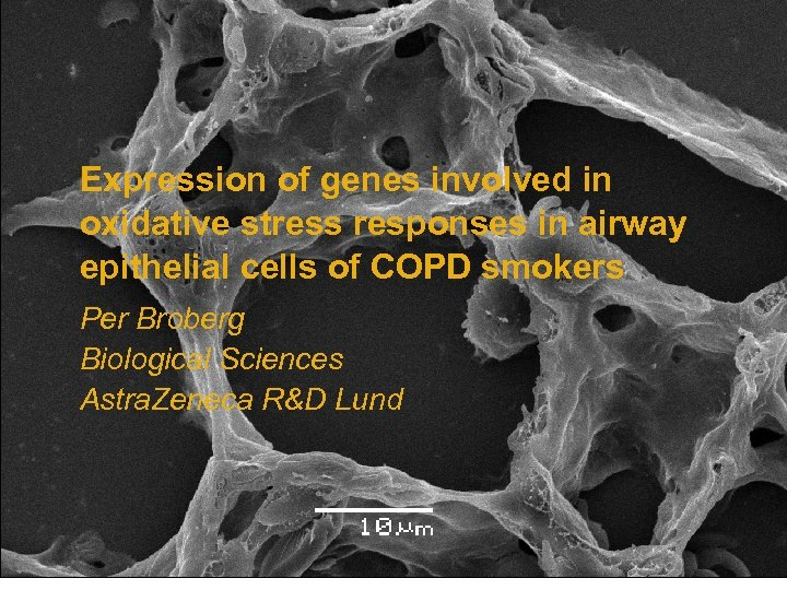 Expression of genes involved in oxidative stress responses in airway epithelial cells of COPD