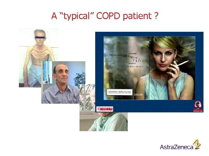 """A """"typical"""" COPD patient ?"""