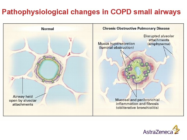 Pathophysiological changes in COPD small airways